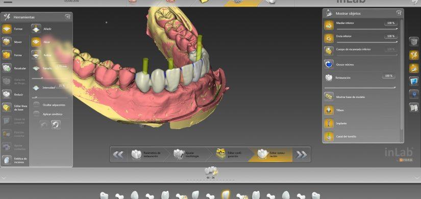 estructura implantes inpost medentika
