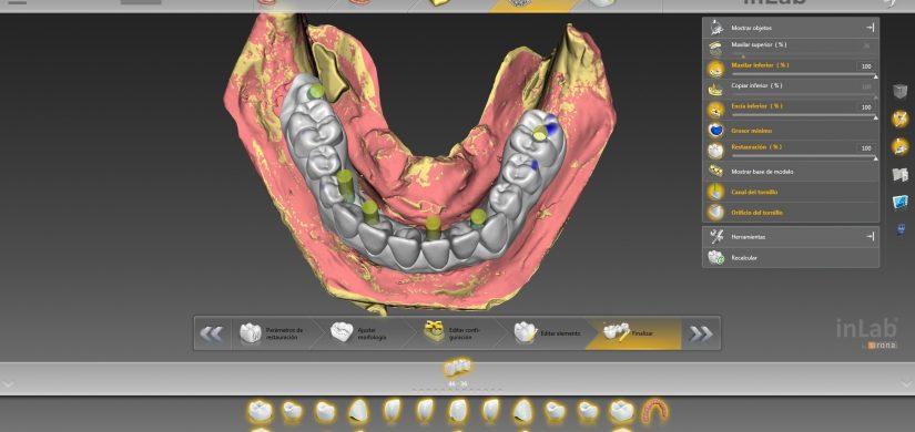sobredentadura implantes 2