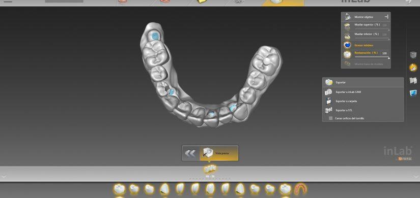 sobredentadura implantes 3