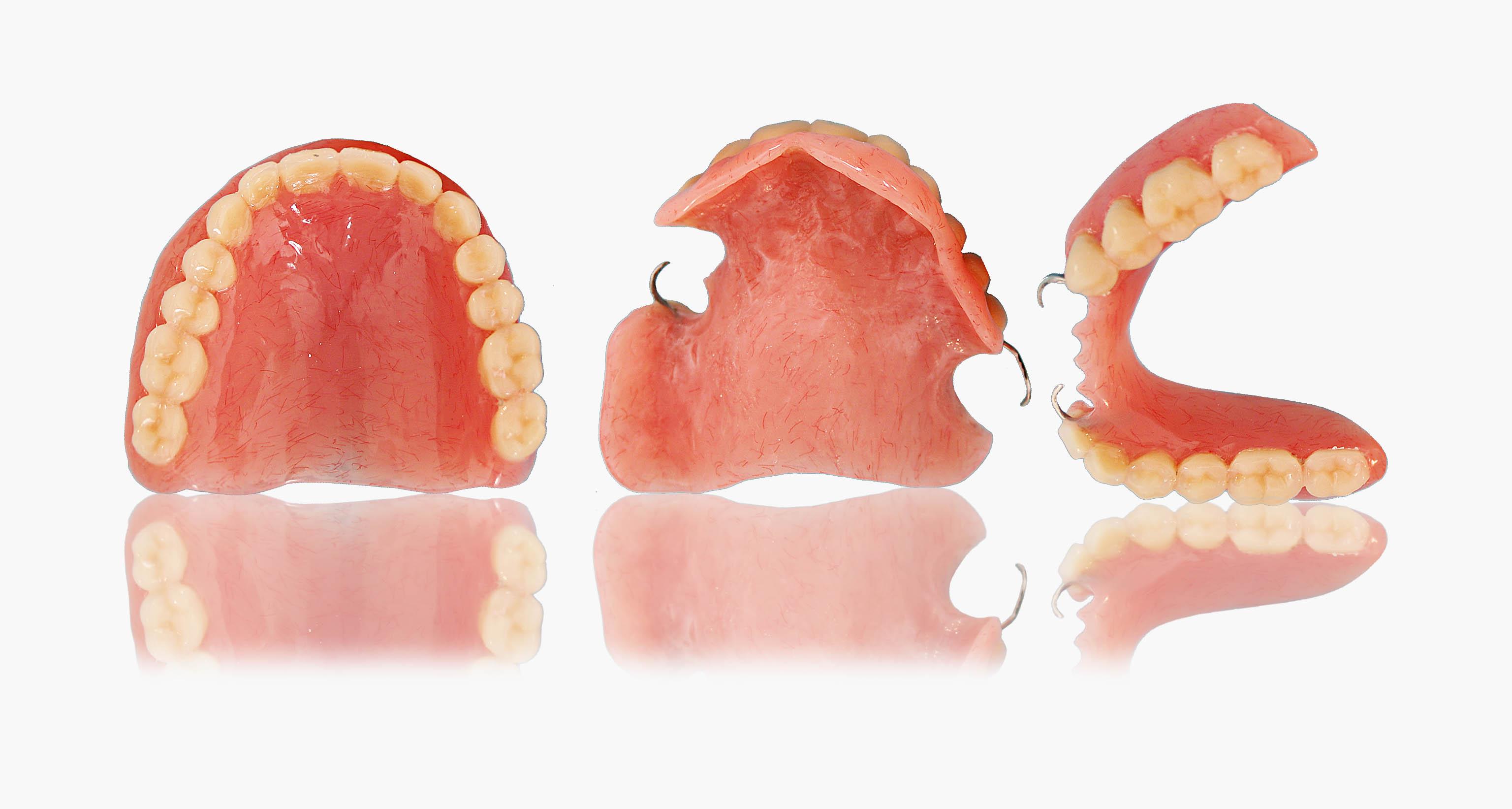 protesis completa de resina